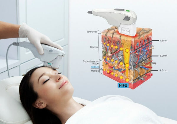▲HIFU therapy used to reduce wrinkles and achieve skin tightness